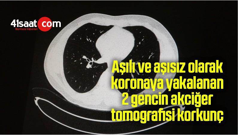 Aşılı ve aşısız olarak koronaya yakalanan 2 gencin akciğer tomografisi korkunç